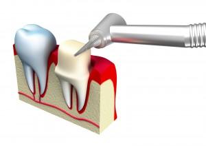 Dental Crowns Loganville Ga