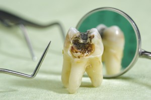 Root Canal Loganville Dentist